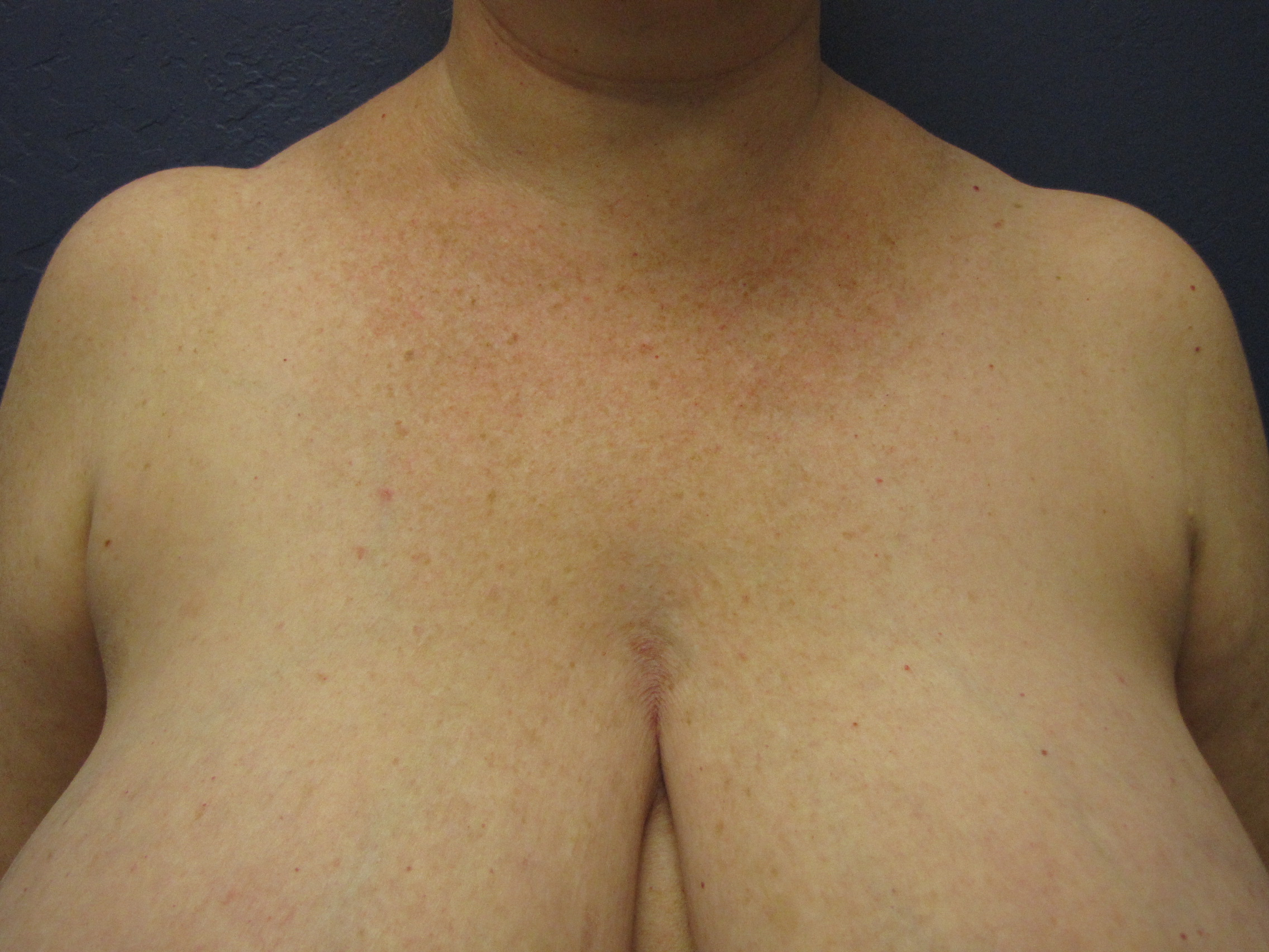 need large reduction surgery breast