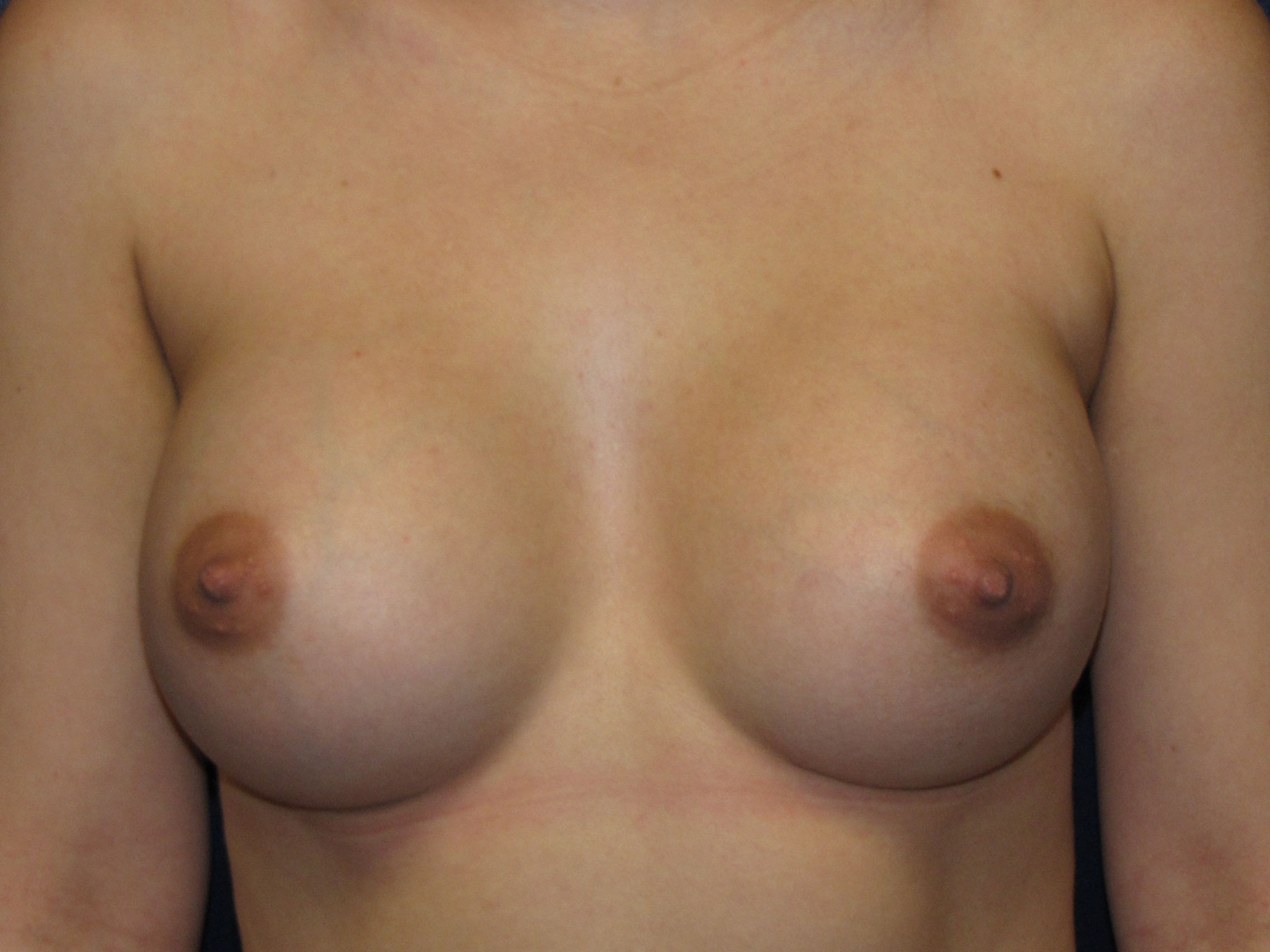 B) After breast implant exchange, going from saline to silicone
