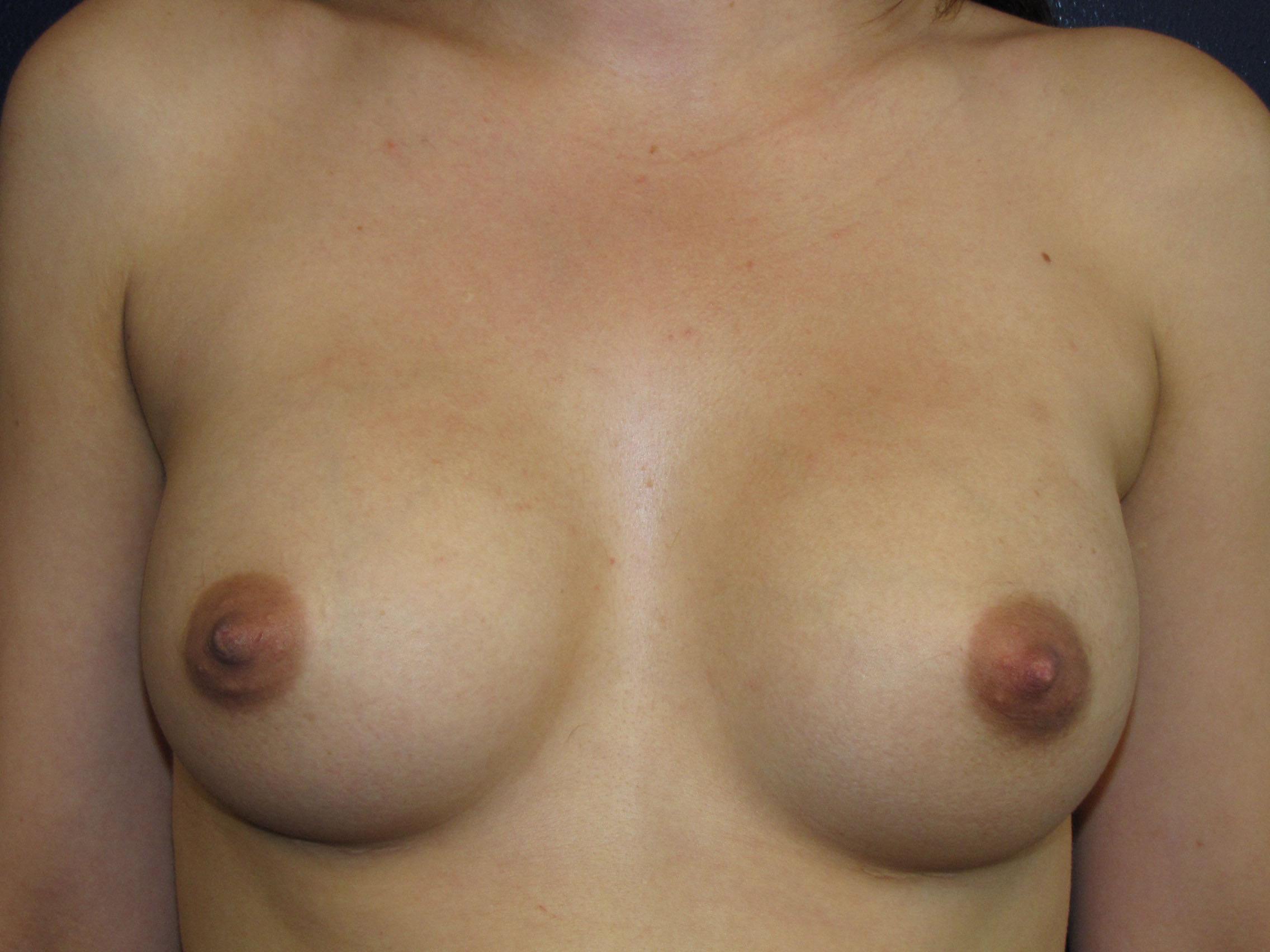 A) Breast augmentation with saline implants - prior to implant exchange