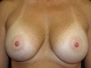 B. 10 years after breast augmentation