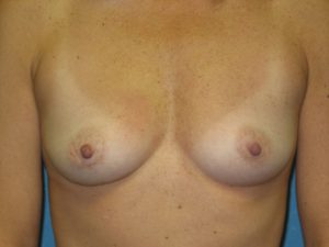 A. Before breast augmentation