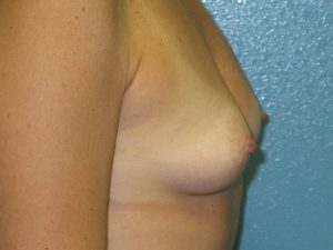 C). Before surgery - side view