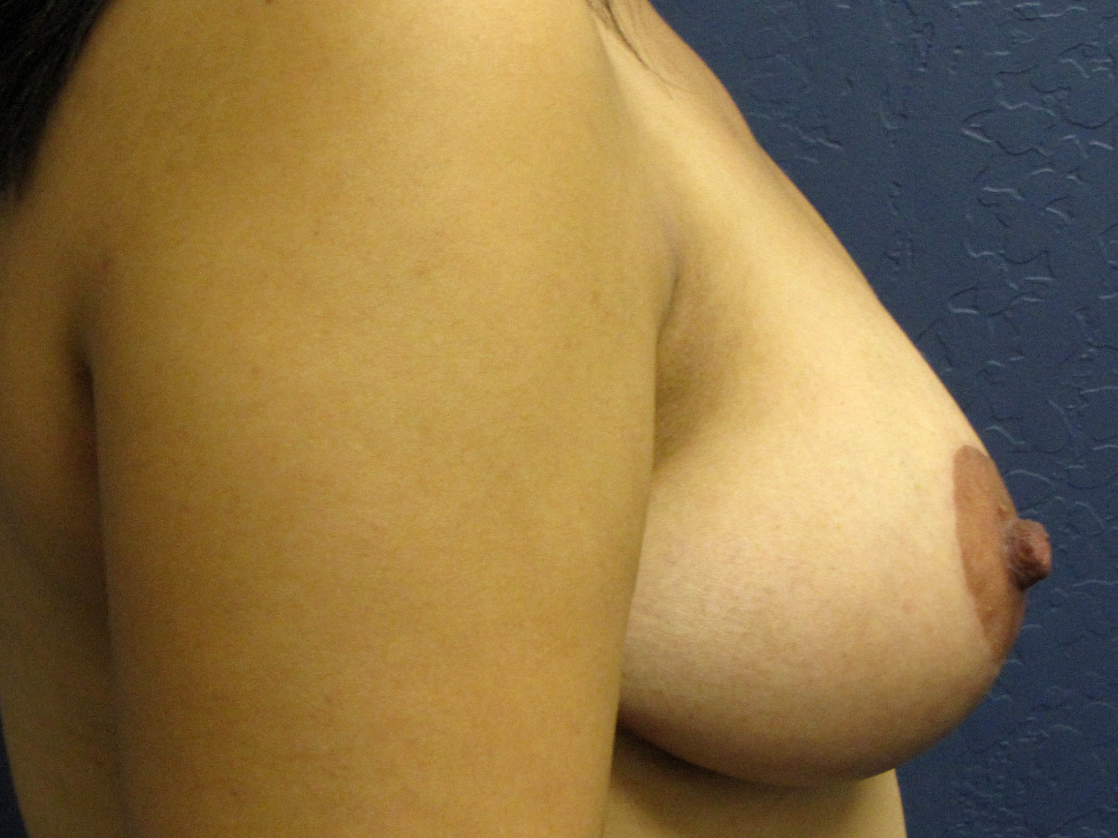 After breast reduction - side view