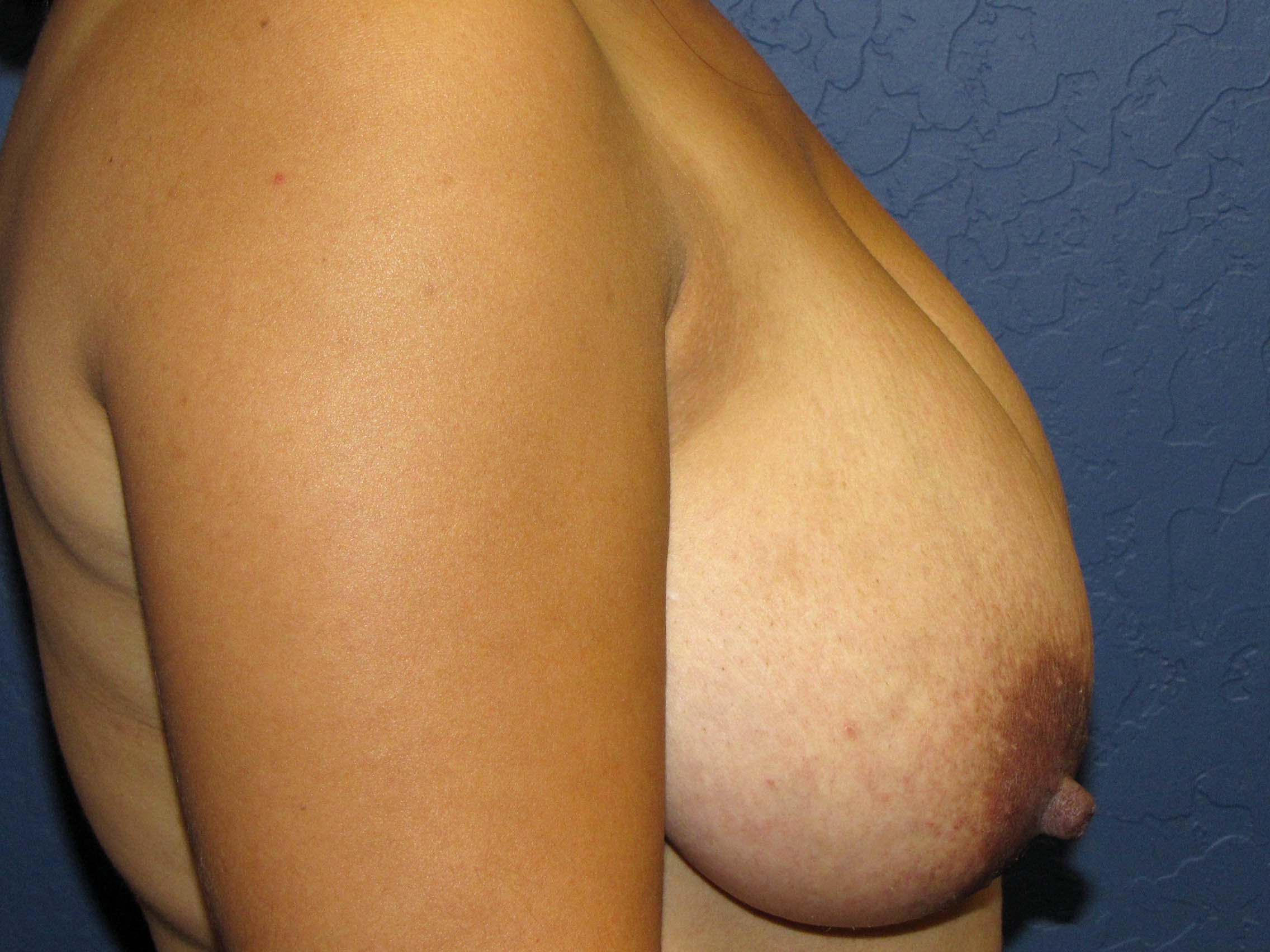 Before breast reduction - side view