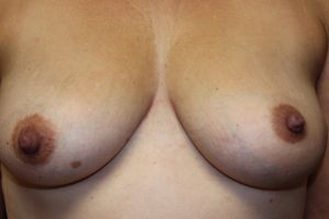 B) After surgical treatment of inverted left nipple