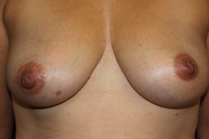 A) Inverted left nipple before surgery