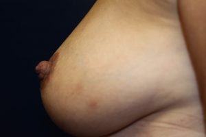 F) After treatment inverted nipple
