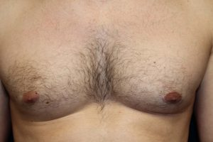 B) Left breast after surgery
