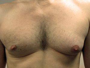 A) Enlarged left breast prior to surgery