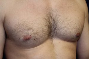 D) Left breast after surgery - oblique view