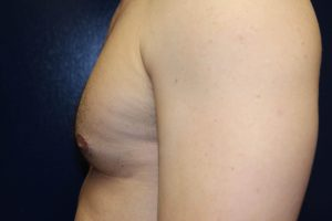 F) Left breast after surgery -  side view