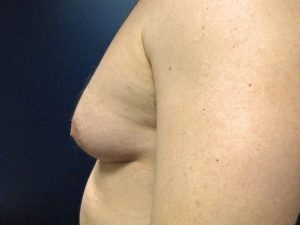 E) Left breast before surgery - side view