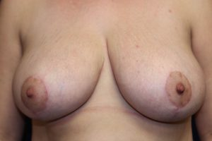 B) After breast reduction - frontal view