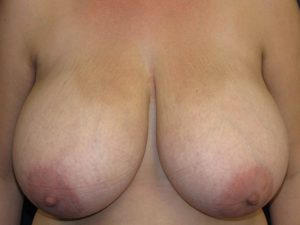 A) Before breast reduction - frontal view