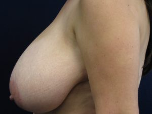 C) Before breast reduction - side view