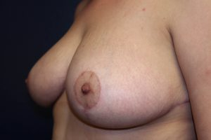 F) After breast reduction - oblique view