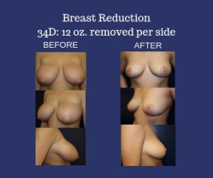 Breast Reduction 34D Before and After Photos