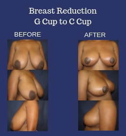 Breast Reduction G Cup to C Cup Before and After Photos