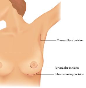 Drawing of breast augmentation incision locations (transaxillary, periareolar, and inframammary)