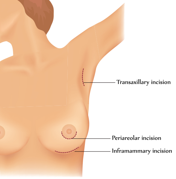 Drawing of breast augmentation incision locations (transaxillary, periareolar, and inframammary)