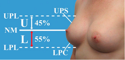 Breasts with key measurements of the upper and lower poles