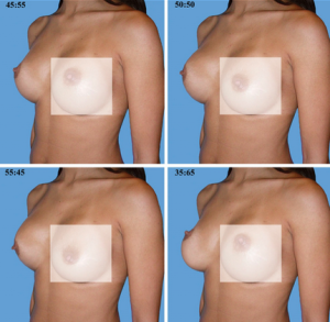 Four photographs of a woman's breasts morphed into different shapes