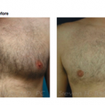 Do I Need Gynecomastia Surgery?
