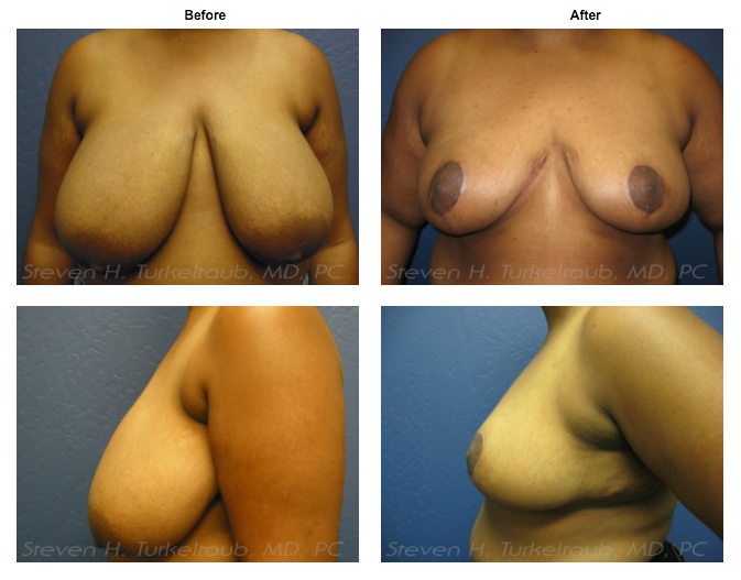 Breast Reduction Before & After Photos - Dr. Turkeltaub