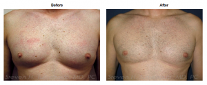 Gynecomastia Surgery Before and After Photos