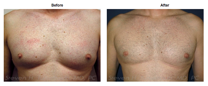 Gerd medication and male breast lump
