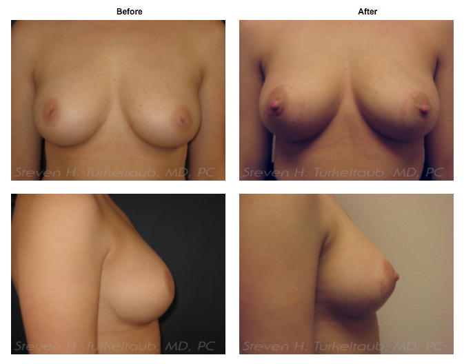 Inverted NIpples Surgery Before and After Photos