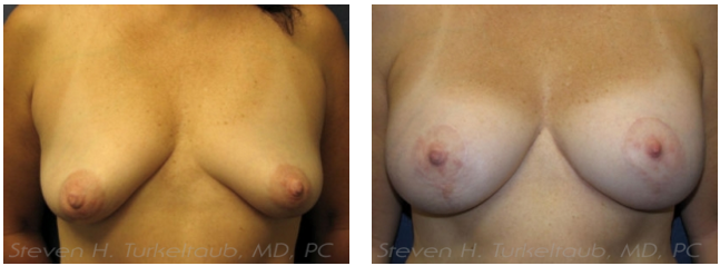Breast Lift with Breast Augmentation Before and After Photos