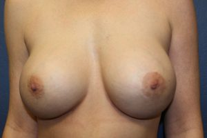 B. After replacement with silicone breast implant
