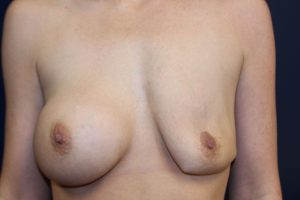 A. Deflation of left breast saline implant