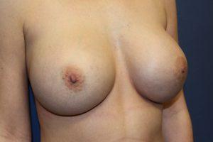 F. postoperative - oblique view