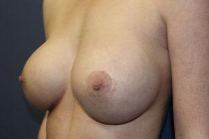 D. postoperative - oblique view