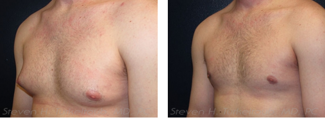 Before and After Liposuction in Male Breast Reduction