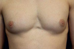 A. Gynecomastia