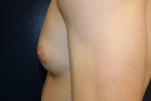 E. before surgery