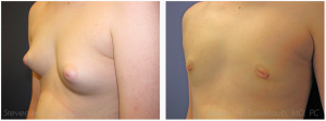 Male Breast Reduction Before and After Photos