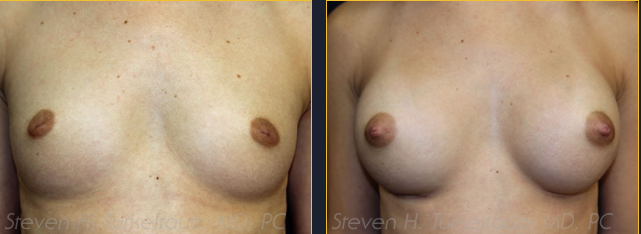 breast-augmentation-before-and-after-photos