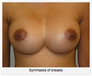 Symmastia of Breasts
