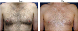 Dr. Turkeltaub Male Breast Reduction Patient Before and After photos