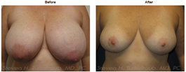 Turkeltaub Before and After Breast Reduction Photos