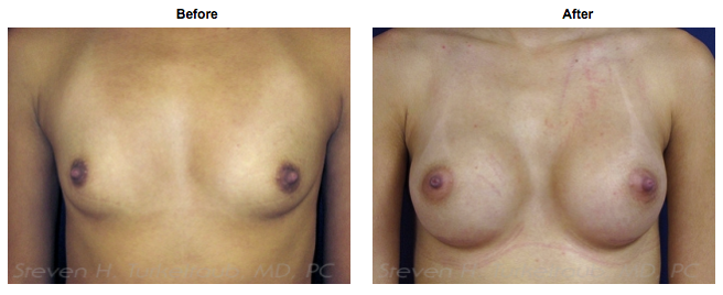 21 Year Old Breast Augmentation Before and After Photos