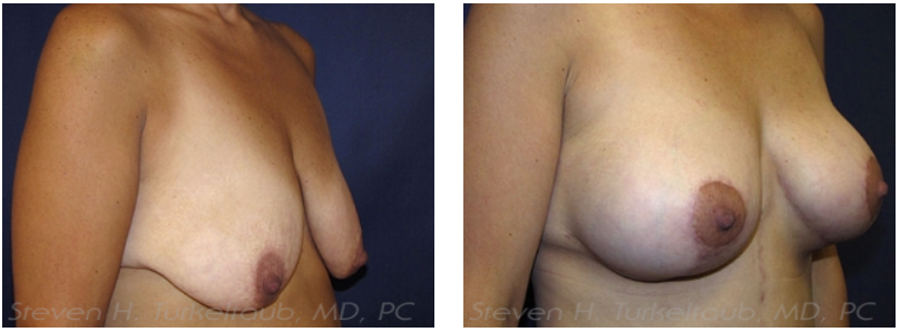 Breast Lift Before and After Photos Side View