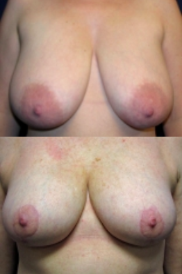 Areola Reduction Before and After Photos