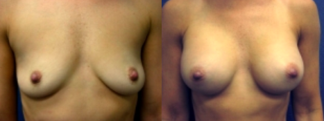 Breast Implant Before and After Procedures