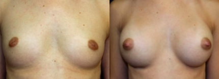 Inverted Nipple Before and After Photos