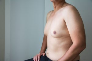 Shirtless Male With Gynecomastia